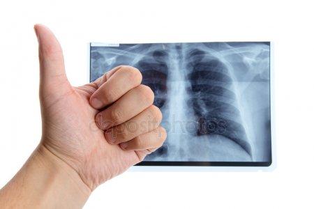 Шановні сумчани! Ви можете пройти флюорографічне обстеження органів грудної порожнини у пересувному флюорографі