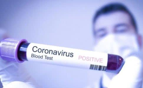 Коронавірус – рекомендації МОЗ